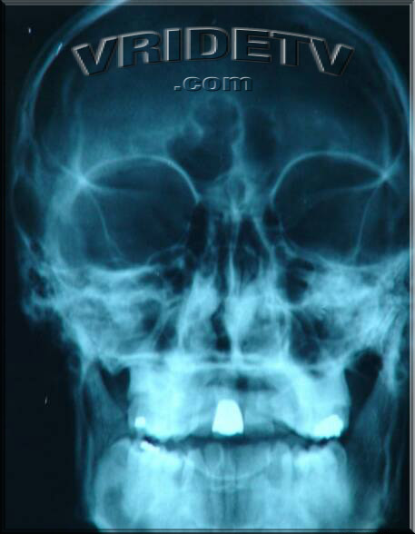 skull xray VRIDETVcom